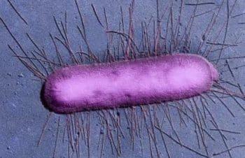 Sécurité alimentaire: Les contaminations à la bactérie E.coli en hausse de 37% en Europe
